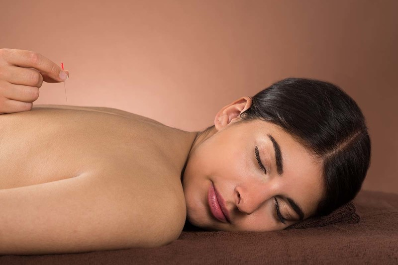 What to Expect During Your Acupuncture Treatment
