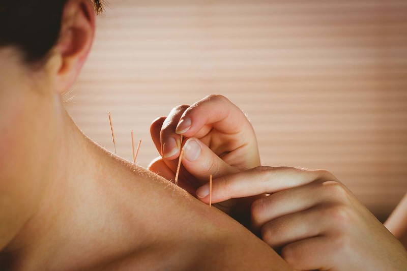 What is Acupuncture and How Does it Work?